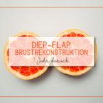 DIEP-Flap Brustrekonstruktion - 1 Jahr danach