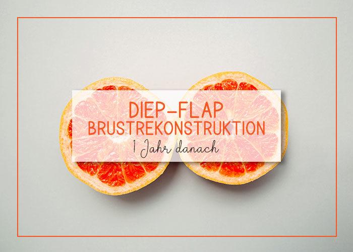 DIEP-Flap Brustrekonstruktion | 1 Jahr danach | Erfahrung | klitzekleinedinge