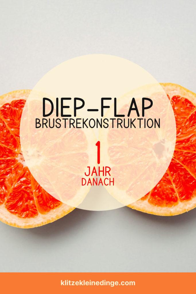 DIEP-Flap Brustrekonstruktion - 1 Jahr danach | klitzekleinedinge